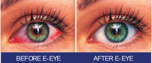 4. E EYE before_after